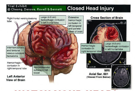 closed head injury trial exhibit